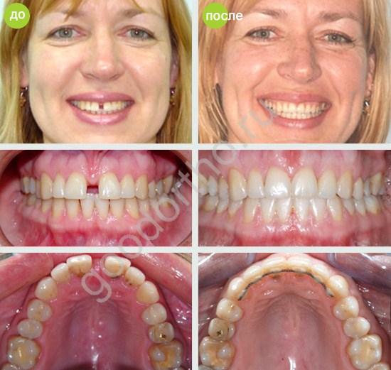 Как из щели между зубами сделать 157