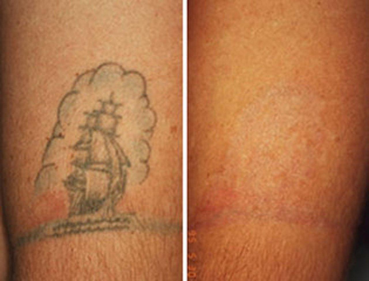 Сильный лазер для удаления тату