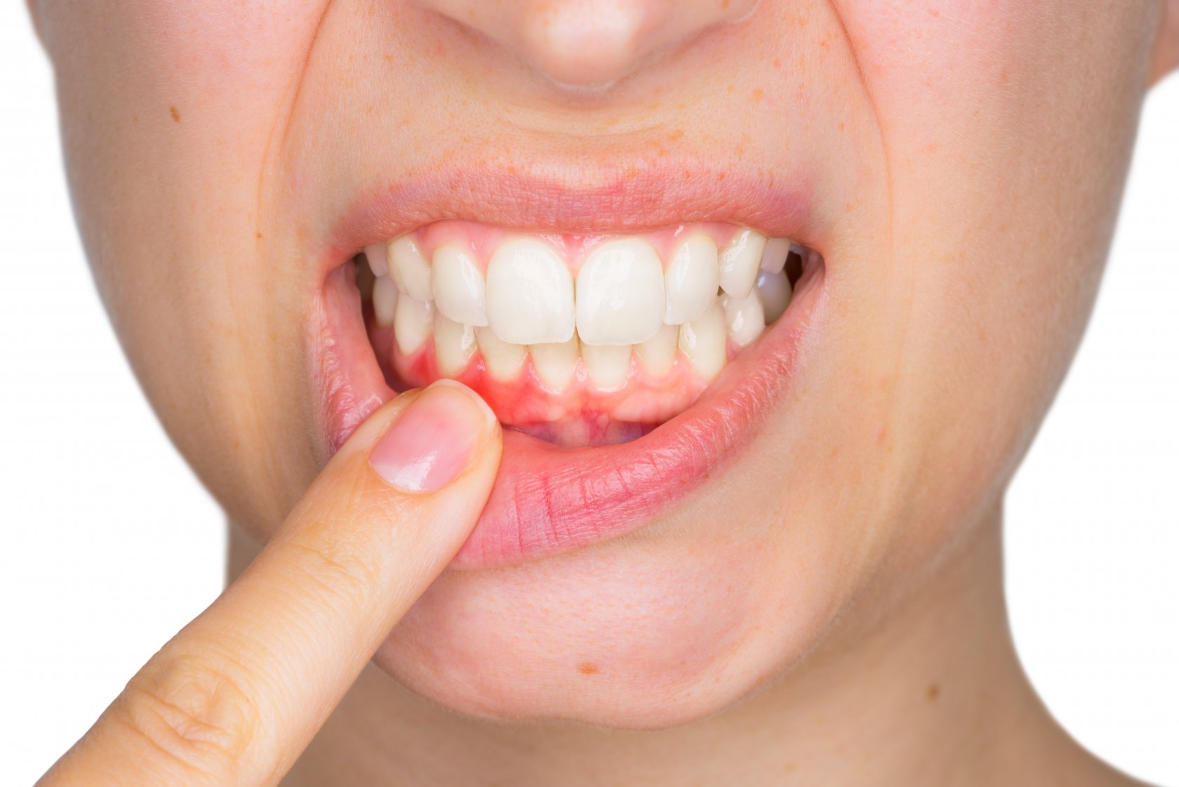 Как укрепить десны зубов в домашних условиях? - Асепта 58