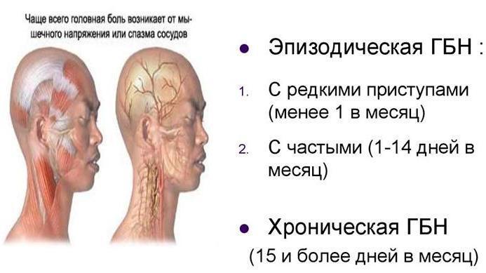 Два вида головных болей напряжения