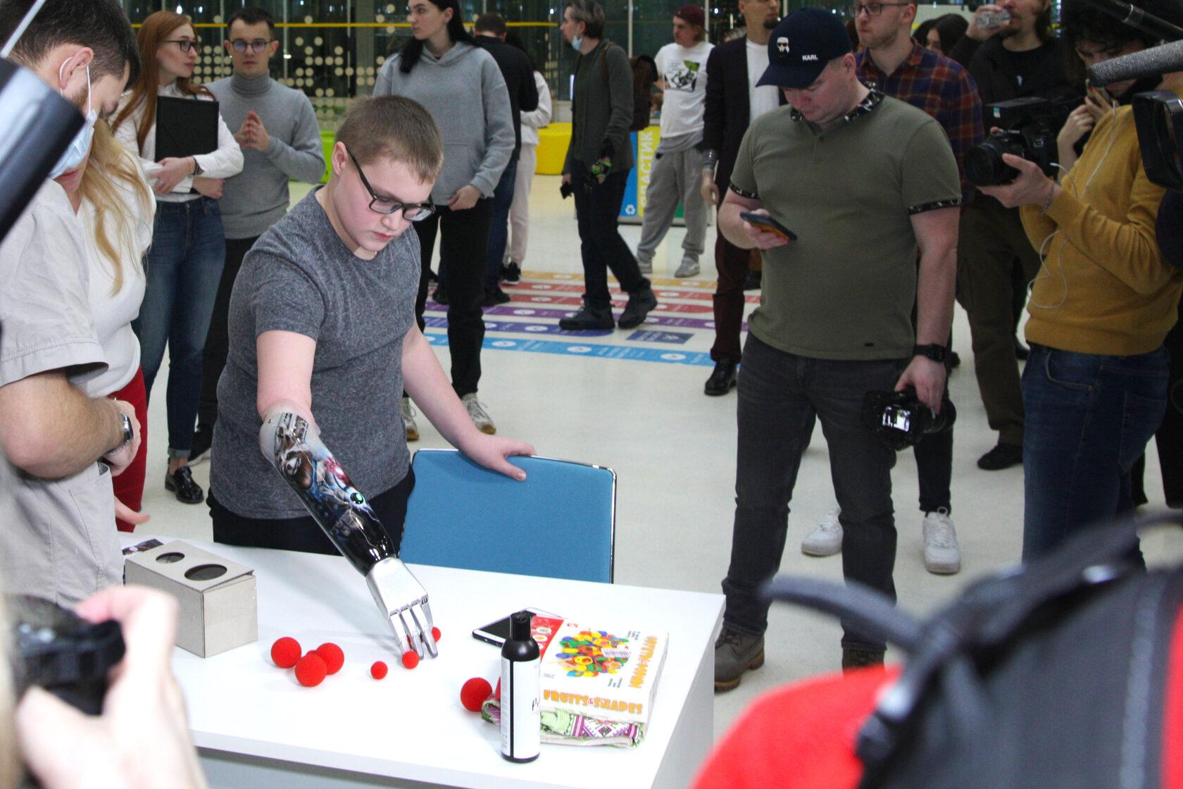 Как получить современный функциональный протез руки в России бесплатно