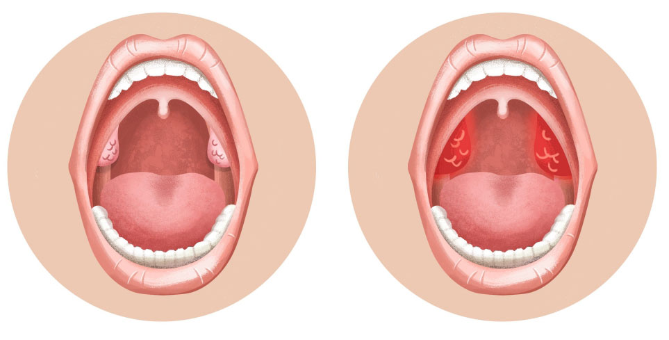 колющая боль в горле