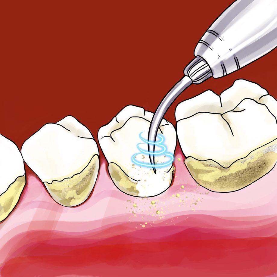 Профессиональная гигиена полости рта и зубов в дрожжино