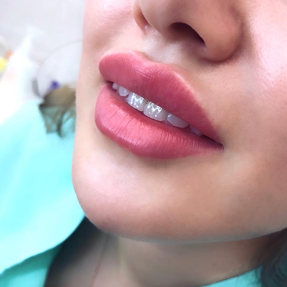 Увеличение губ красивые формы фото