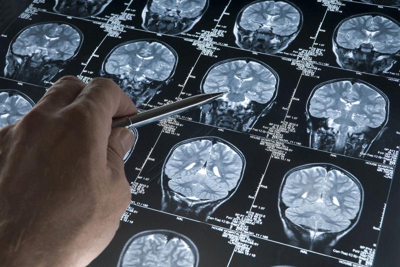 епідеміологія пухлин головного мозку