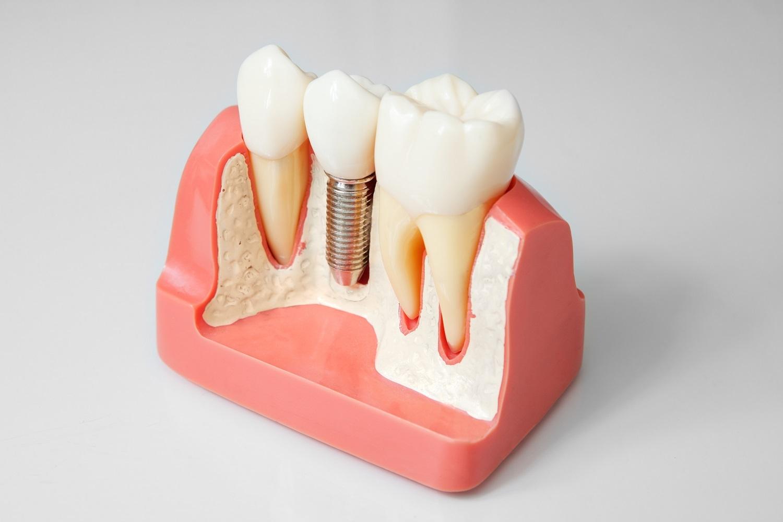 Картинки по стоматология ортопедия
