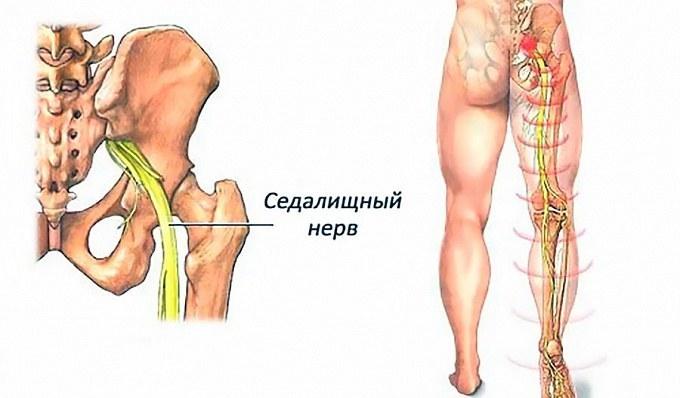 Изображение седалищного нерва