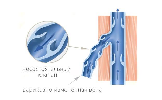 Несостоятельный клапан при варикозе