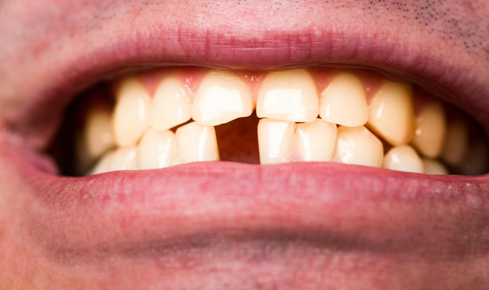 Особенности удаления нижнего зуба