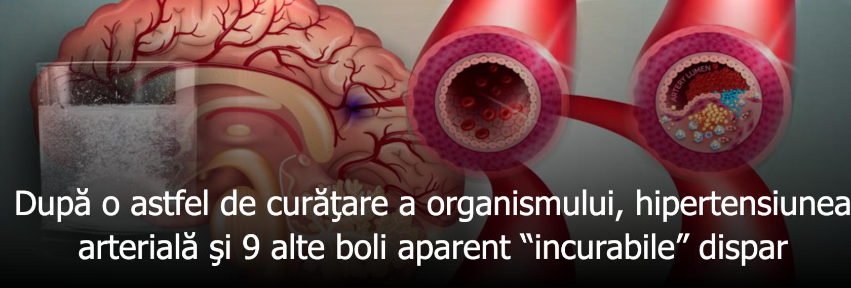 de ce venele varicoase sunt incurabile)