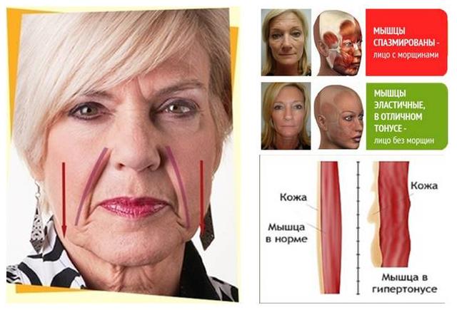 полипропилена лучше проявление гипертонуса лицевых мышц любую