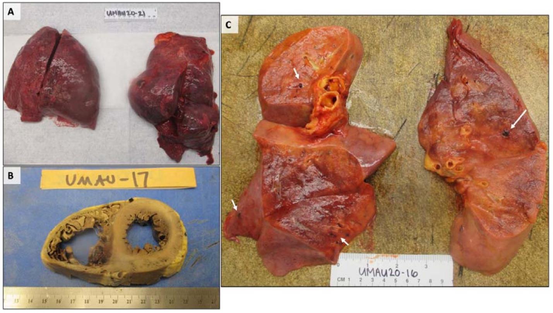 Макроскопические изменения сердца и легких на аутопсии