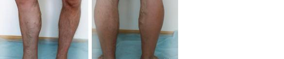 Развивающаяся форма варикозной болезни, варикозное расширение вен, отек, шишки на ногах
