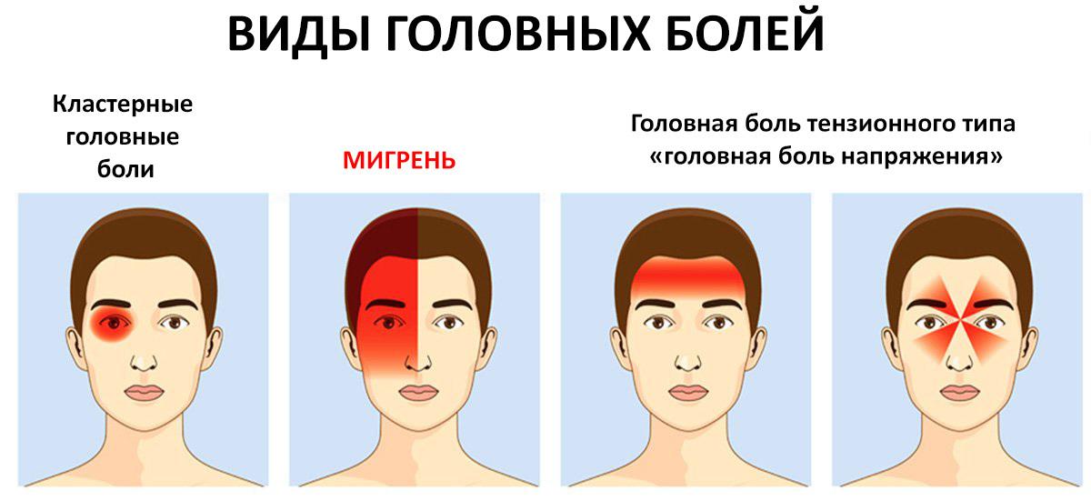 головная боль виды