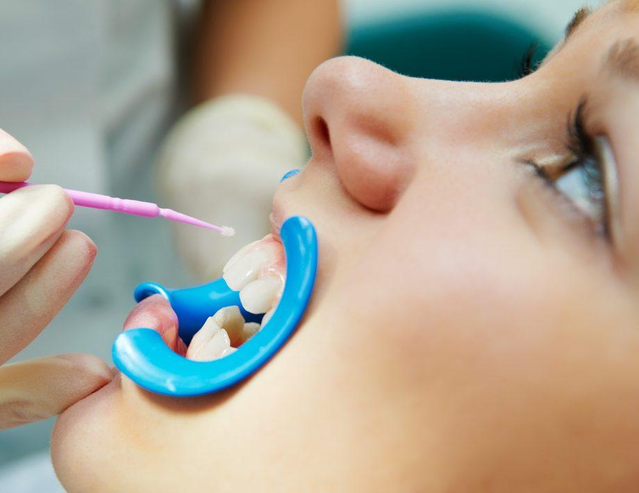 фторирование зубов детям в Дрожжино