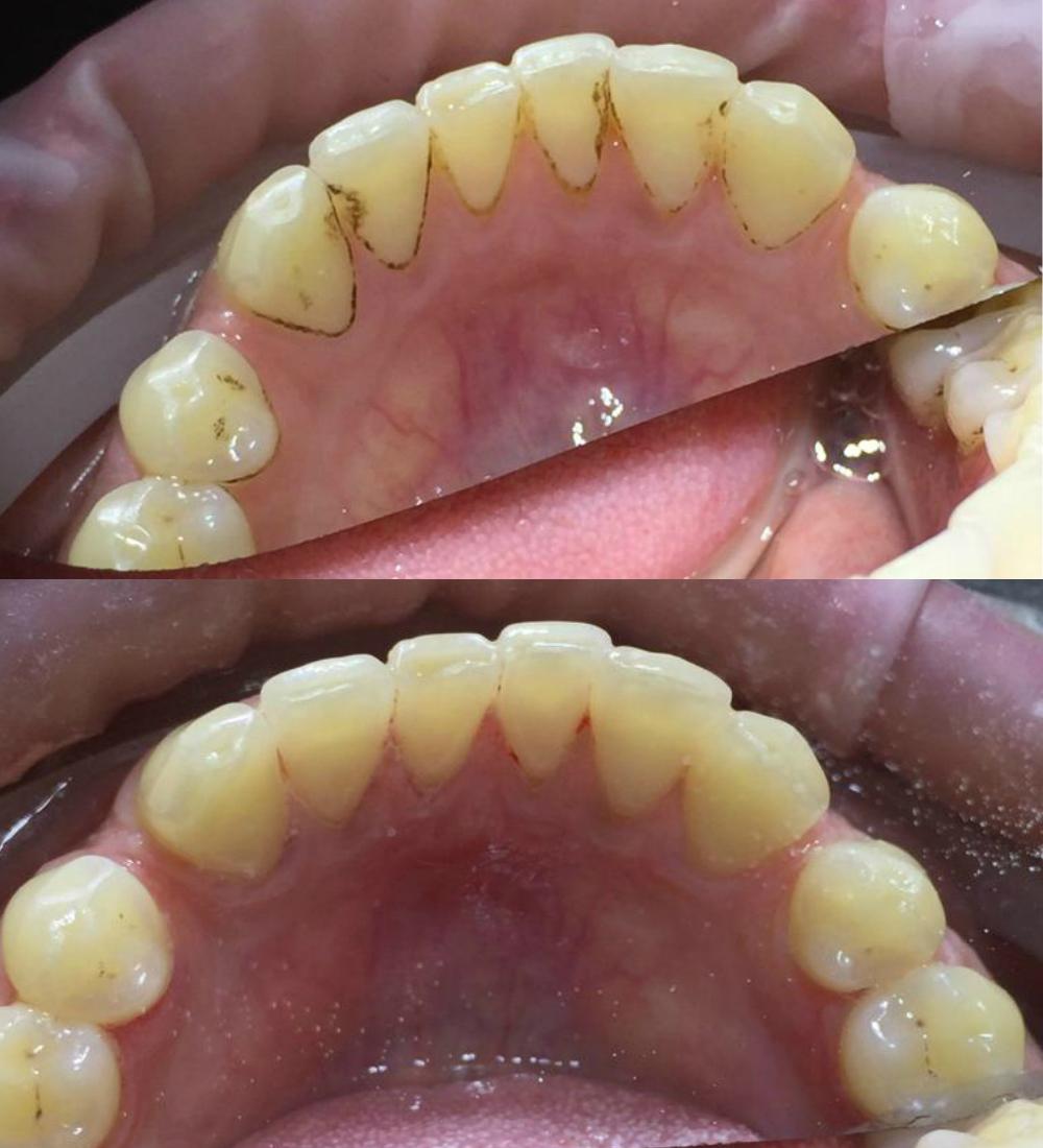 чистка зубов до после