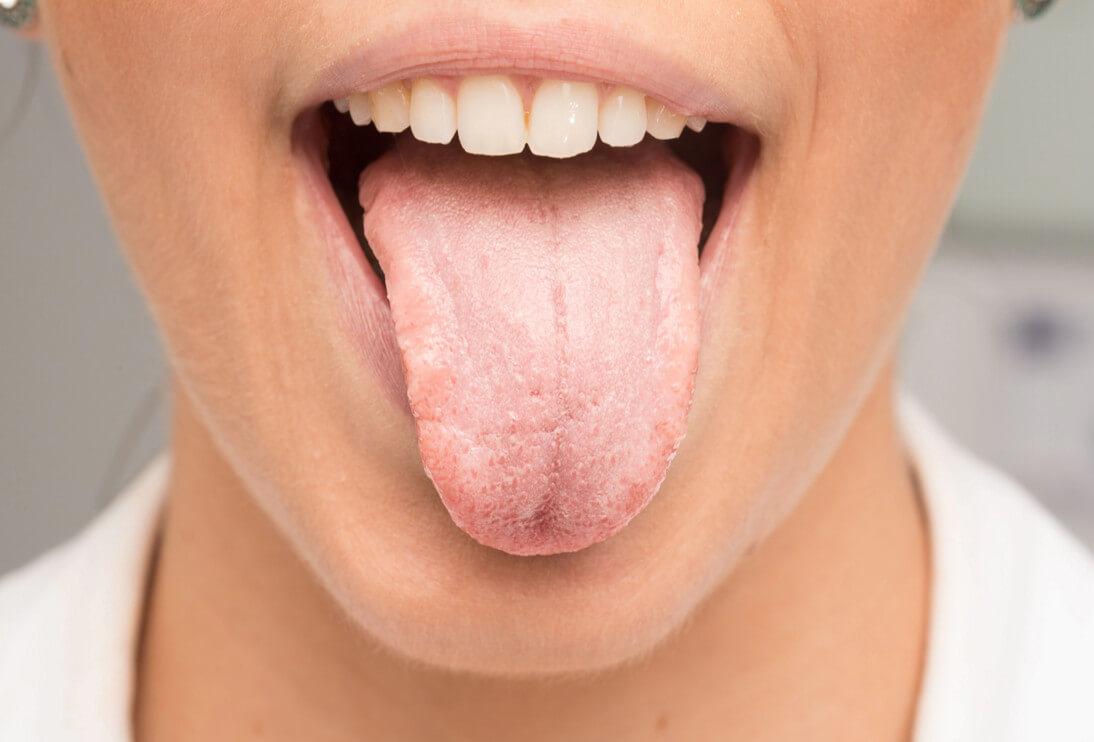 белы налет на языке