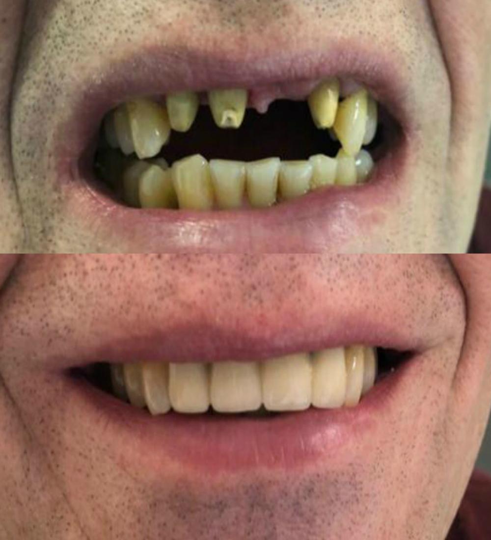 имплантация зубов дрожжино до после