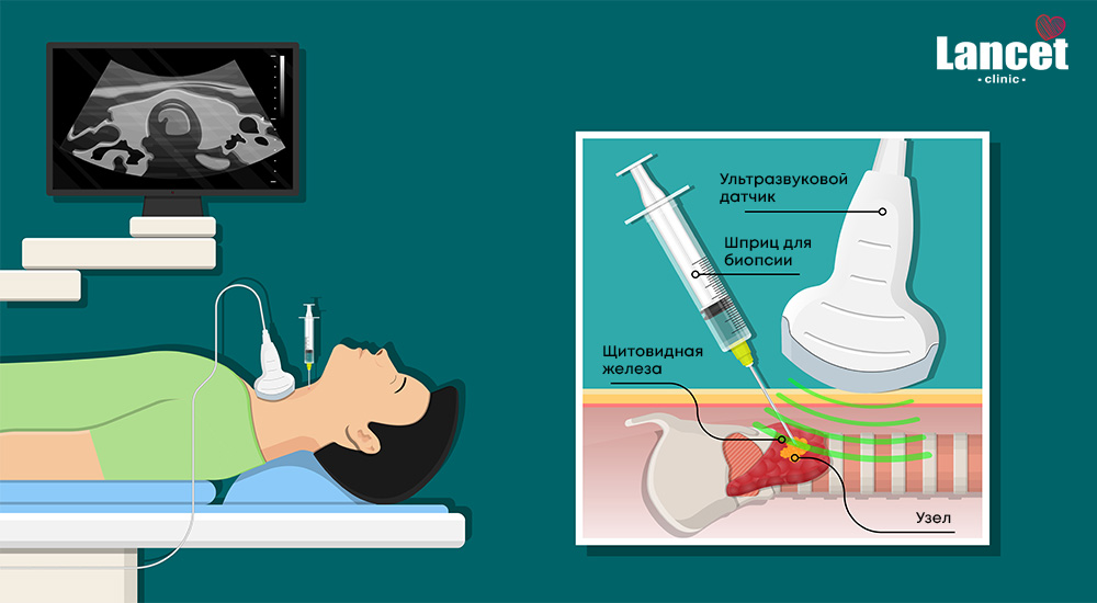 Тонкоигольная аспирационная биопсия щитовидной железы