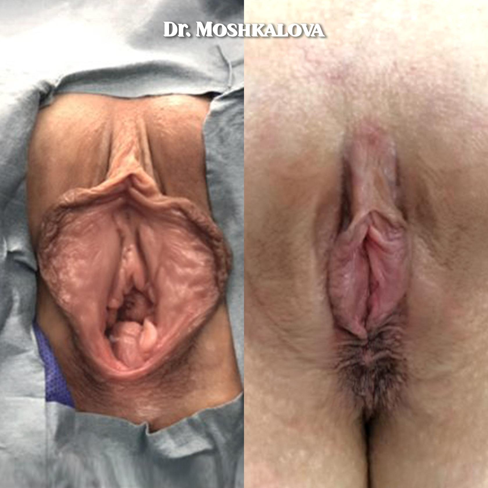Порноактрисы сделавшие лабиопластику, я трансвестит ищу ебаря в омске