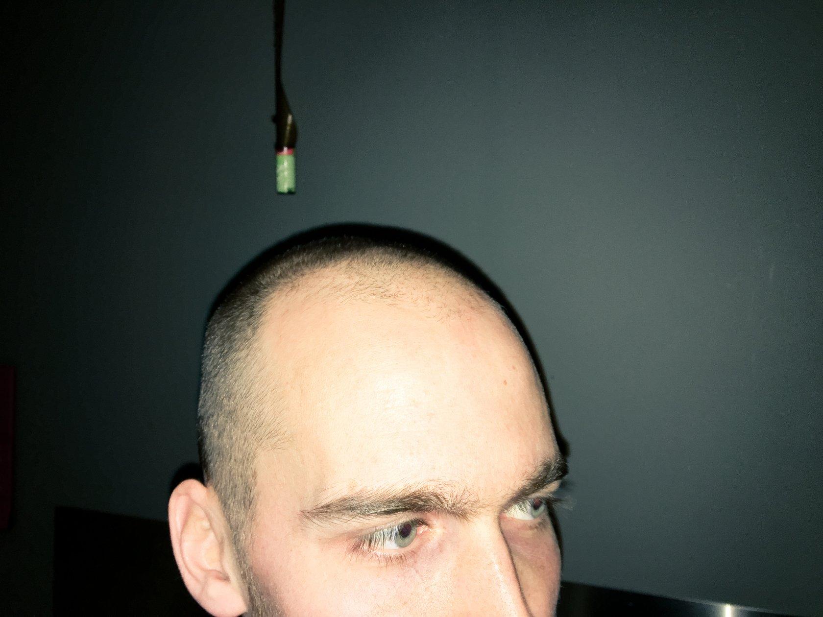 tyndhåret mænd