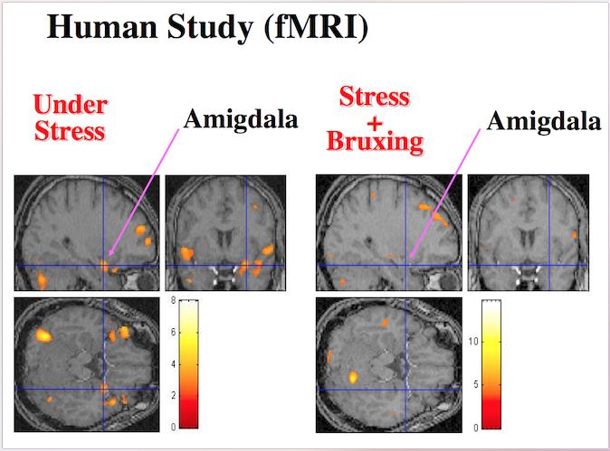 Стресс и бруксизм в стоматологии