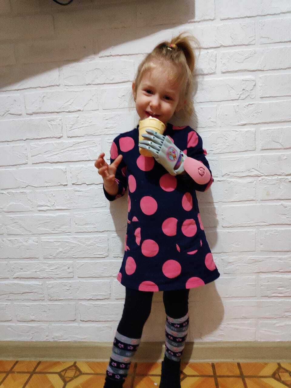 Девочка с протезом руки Киби