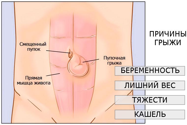 Операция по удалению пупочной грыжи у взрослых