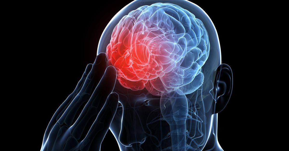 нарушение мозгового обращения