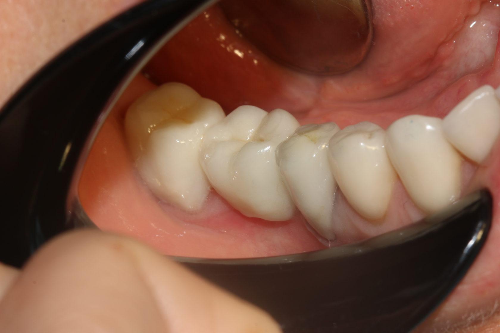 коронка мост на зубы фото печатных
