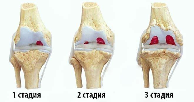 Стадии развитии гонартроза коленного сустава