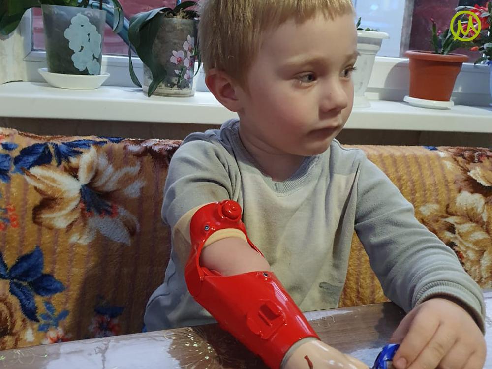 Протез предплечья для трехлетнего мальчика