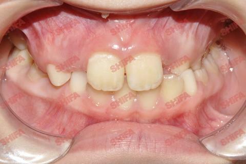 Брекеты - Ситуация ДО выравнивания зубов