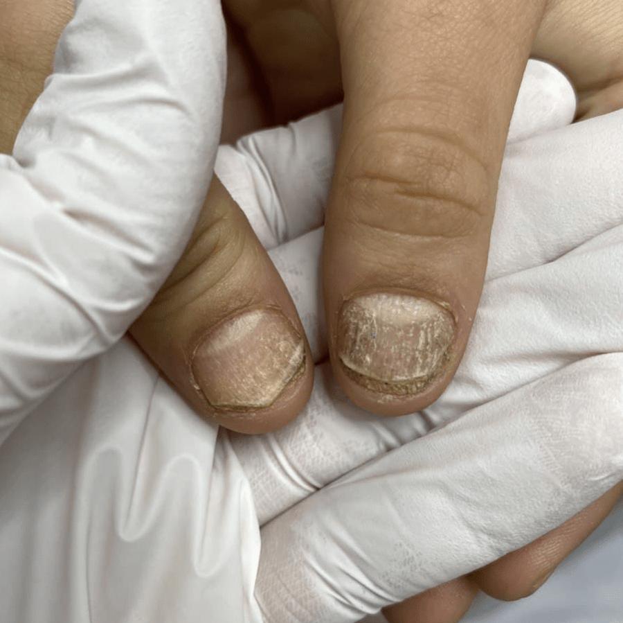 Трахионихия, патология всех 20 ногтей
