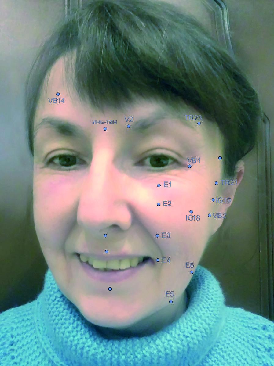 картинка гирудотерапия в косметологии может