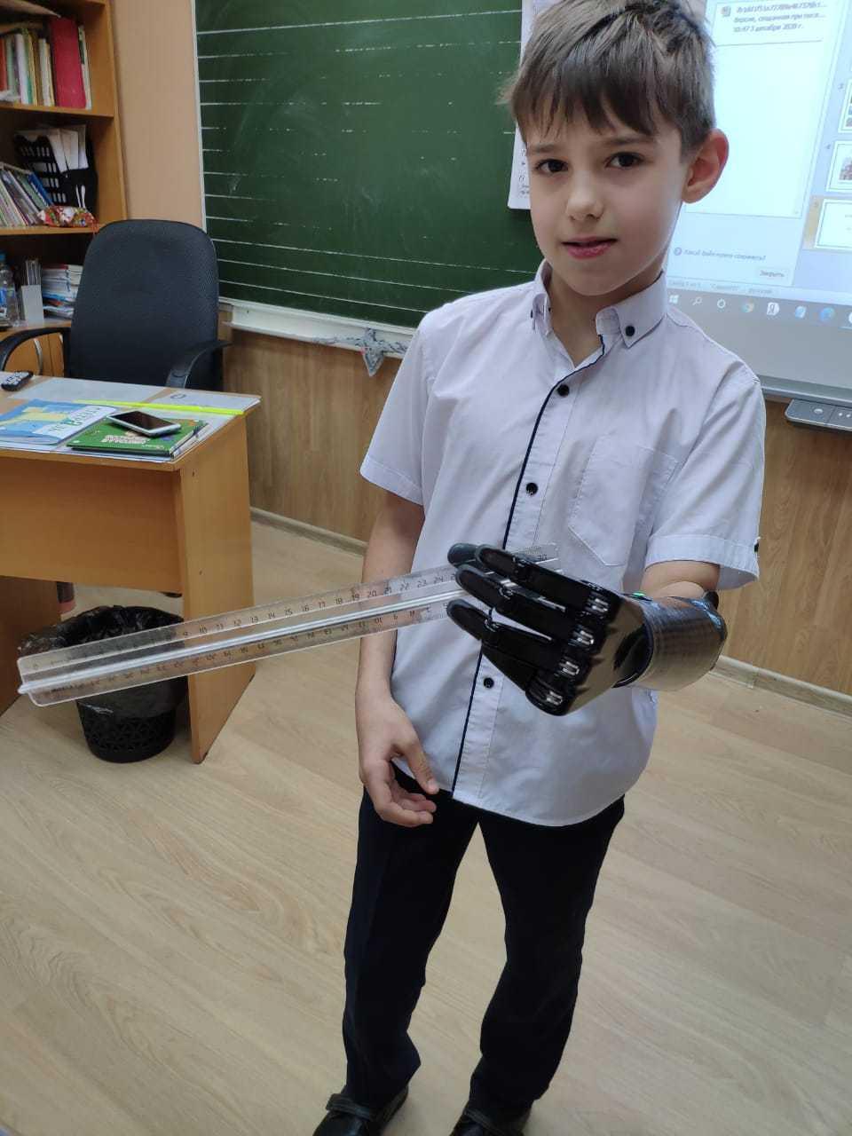 бионический протез руки для ребенка