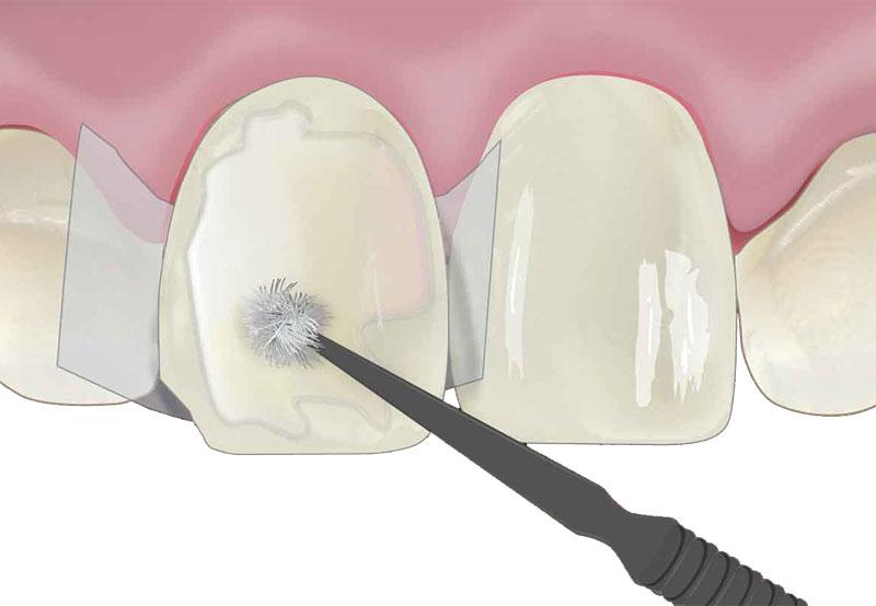 реставрация зубов дрожжино