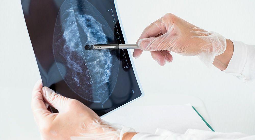 патологія молочних залоз
