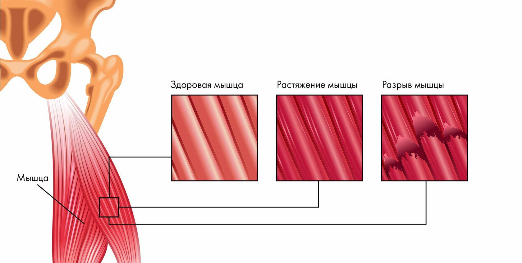 Растяжение мышц при сорванной спине