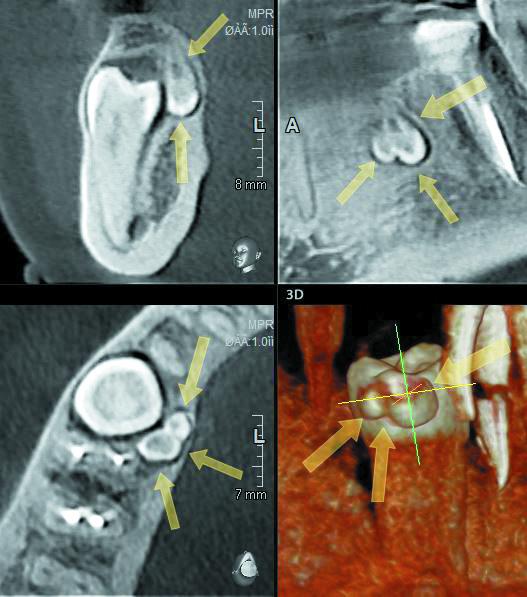 Визуализация составной одонтомы, которая располагается на уровне коронковой части 4.5зуба, орально, втолще кортикальной пластинки альвеолярной части нижней челюсти. Одонтома вплотную прилегает ккоронке зуба без признаков резорбции последнего. Представлена двумя неправильно сформированными зубами