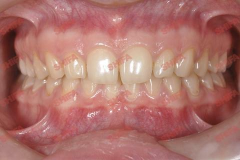 Ситуация ПОСЛЕ выравнивания зубов брекетами