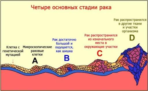 стадии рака, рак, психосоматика рака