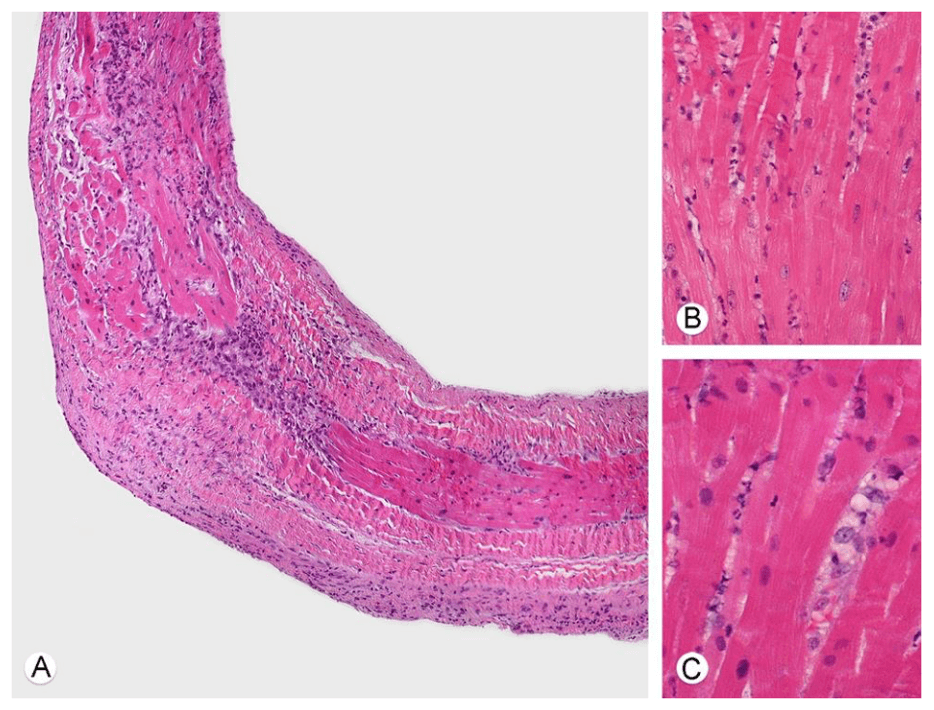 Рисунок 2. Данные эндомиокардиальной биопсии. A) Срез мясистой трабекулы, окраска гематоксилин-эозин, увеличение х100 – выраженная воспалительная инфильтрация эндокарда и миокарда. B) Окраска других биоптатов – умеренная воспалительная инфильтрация интерстиция, состоящая преимущественно из гистиоцитов с бледной, пенистой цитоплазмой. Обращает внимание отсутствие некротических/апоптических изменений кардиомиоцитов, также отсутствуют тромбы в сосудах микроциркуляторного русла и на поверхности эндокарда. C) На большом увеличении (х400) обнаруживается инфильтрация миокарда гистиоцитами, более мелкими мононуклеарными клетками, встречаются полиморфноядерные клетки.