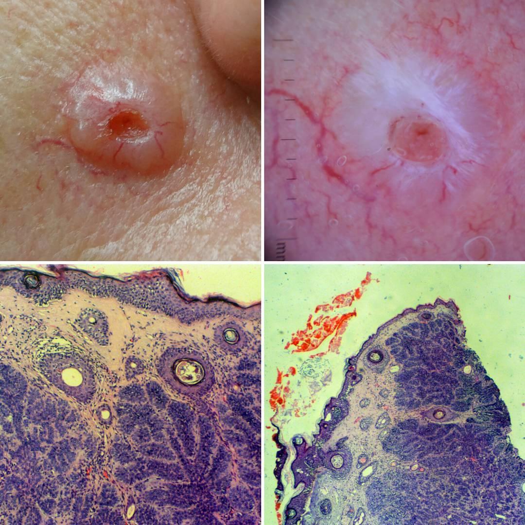 Базалиома кожи - диагностика и лечение