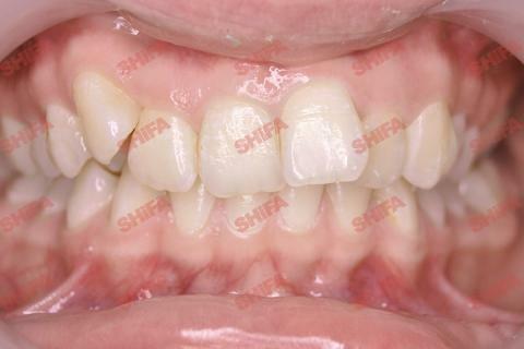 ДО выравнивания зубов брекетами