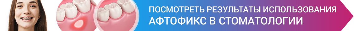 https://aphtofix.ru/articles/primenenie-adgezivnogo-krema-aftofiks-dlja-slizistoj-obolochki