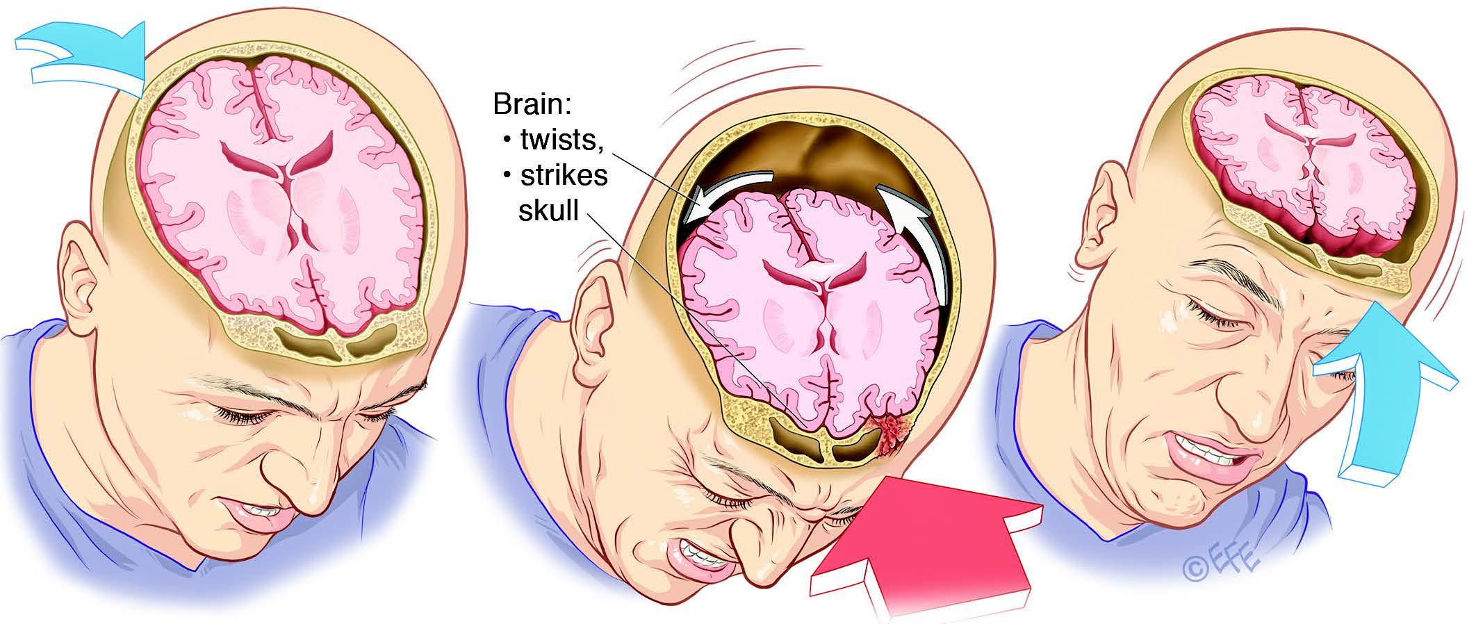 головная боль после удара