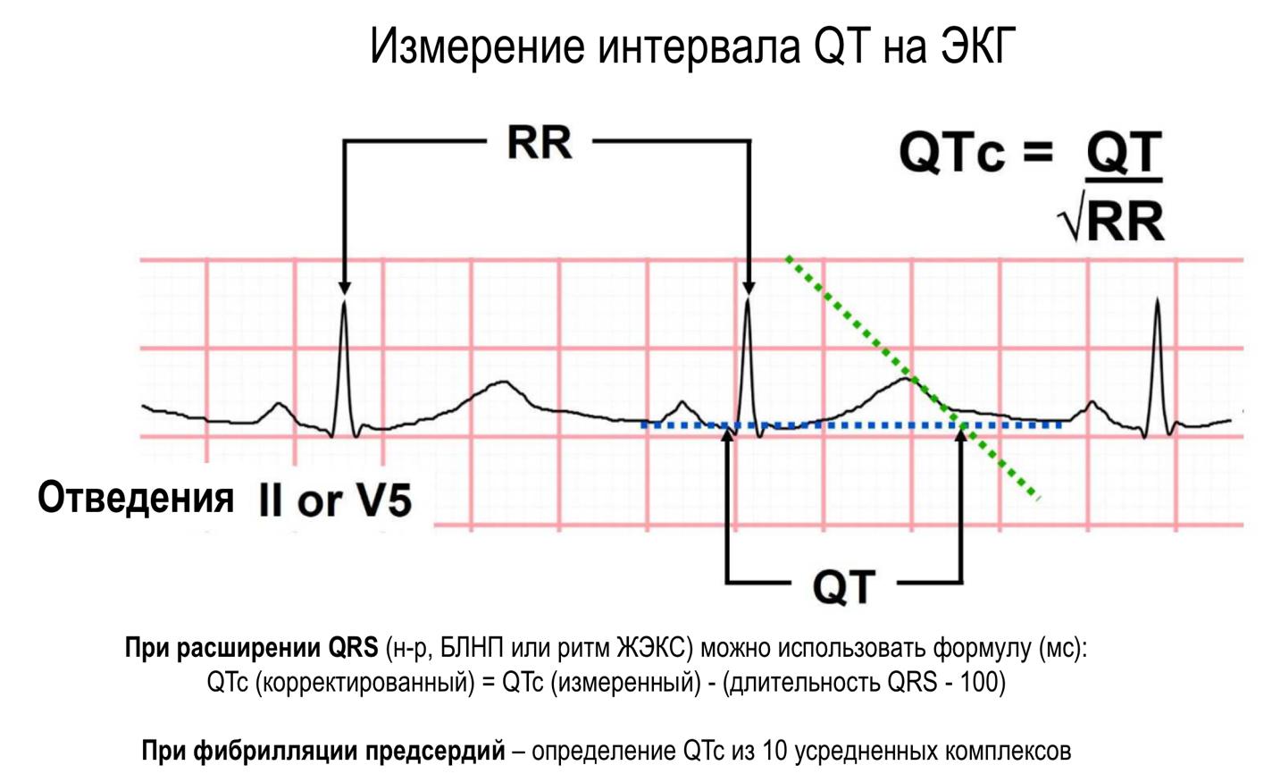 Руководство по минимизации риска лекарственно-индуцированной желудочковой аритмии при лечении COVID-19: положение Канадского общества сердечного ритма