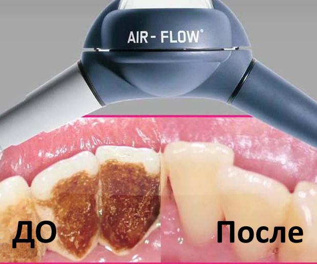 чистка зубов AirFlow