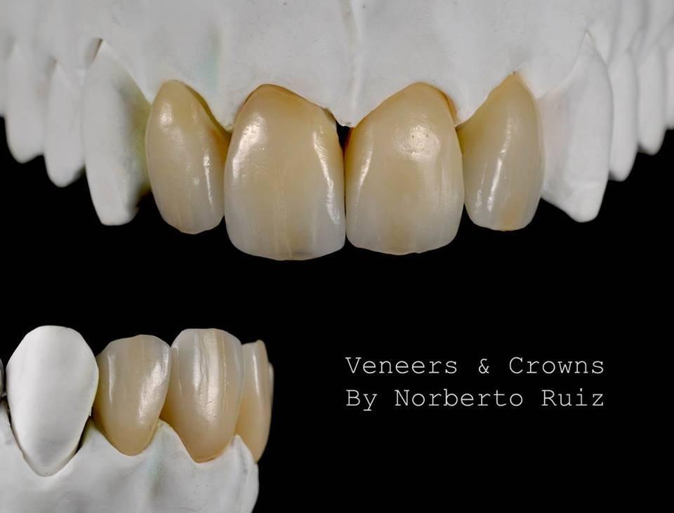 Зубные Виниры на рефракторе